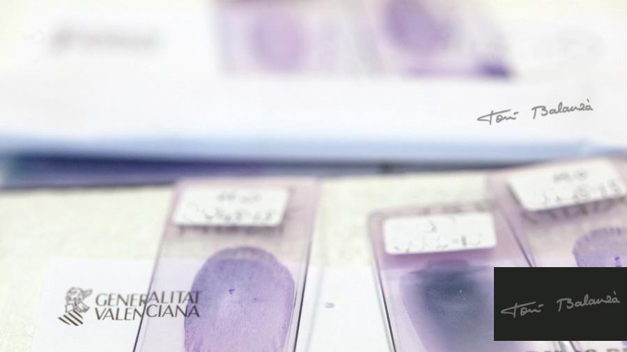 Investigación leucemia en el hospital La Fe de Valencia