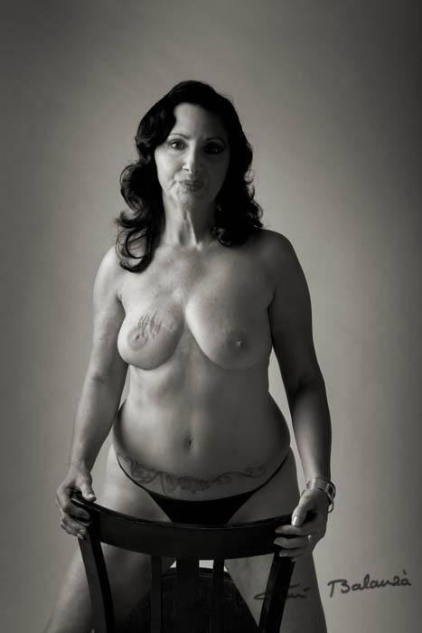 Carmen Mujer mastectomizada