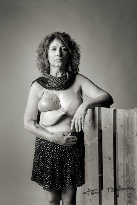 Marisa mujer mastectomizada por el cáncer de mama