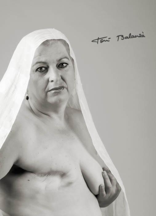 Teresa mujer mastectomizada por el cáncer de mama