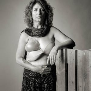 Marisa mujer mastectomizada por el cáncer de mama -