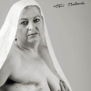 Teresa mujer mastectomizada por el cáncer de mama -