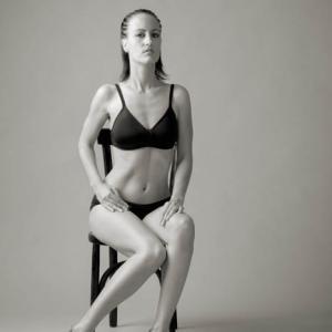 Beatriz Micó mujer mastectomizada - Beatriz Micó, En esta imagen se aprecia la normalidad con la que se puede lucir la ropa interior una vez se ha producido la mastectomía de un pecho, incluso tras las sesiones de quimioterapia y radiotrapia. Las marcas de la radioterapia, todavía se aprecian sobre la piel de su pecho mastectomizado.